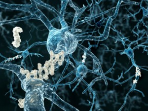 159442-alzheimers-brain-neurons